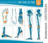 foot and leg pain. arthritis...   Shutterstock . vector #1101733124