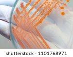 serratia marcescens is a...   Shutterstock . vector #1101768971