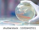 serratia marcescens is a... | Shutterstock . vector #1102642511