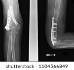 x ray image film fracture elbow.... | Shutterstock . vector #1104566849