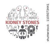 kidney stones banner. symptoms  ... | Shutterstock .eps vector #1105073441