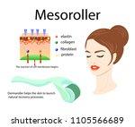 mesoroller application  face of ... | Shutterstock .eps vector #1105566689