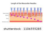 length of the mesoroller... | Shutterstock .eps vector #1106555285