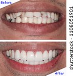 Small photo of Before & after treatment with new smile by dentist