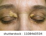xanthelasma on the skin of the... | Shutterstock . vector #1108460534