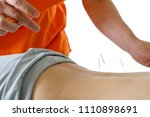 acupuncture treatment in asia   Shutterstock . vector #1110898691