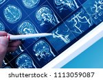 doctor pointing with pen to the ... | Shutterstock . vector #1113059087