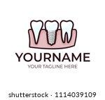 stomatology  dental implant ...   Shutterstock .eps vector #1114039109