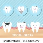 tooth decay vector illustration   Shutterstock .eps vector #1115306699