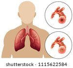 human chronic obstructive... | Shutterstock .eps vector #1115622584
