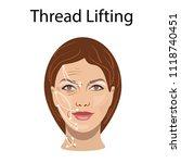 thread lifting  vector... | Shutterstock .eps vector #1118740451