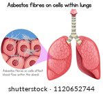 asbestos fibres on cells within ... | Shutterstock .eps vector #1120652744