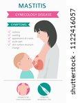 mastitis  breastfeed  medical... | Shutterstock .eps vector #1122416057