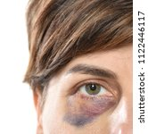 close up of woman with bruise... | Shutterstock . vector #1122446117