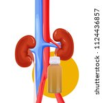 inflammation of the kidney... | Shutterstock .eps vector #1124436857