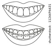 line art black and white teeth... | Shutterstock .eps vector #1126696631