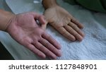 Small photo of Pallor or Anaemia. Comparing normal and anaemic hands of two different individuals.