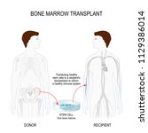 bone marrow transplant. men... | Shutterstock .eps vector #1129386014