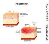 atopic dermatitis  atopic...   Shutterstock .eps vector #1131267749