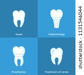 implantology  treatment of... | Shutterstock .eps vector #1131546044