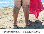 the disease varicose veins on a ...   Shutterstock . vector #1133242247