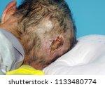 bedsores  decubitus ulcer ... | Shutterstock . vector #1133480774