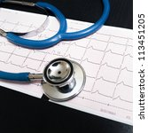 stethoscope and cardiogram - stock photo