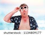 Sunburned Man With Sunglasses...