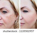 girl face wrinkles before and... | Shutterstock . vector #1135502957