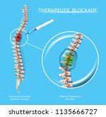 therapeutic blockage with... | Shutterstock .eps vector #1135666727