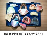 suitcase full of prosthetic... | Shutterstock . vector #1137941474