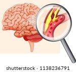 human brain with... | Shutterstock .eps vector #1138236791