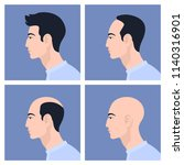 stages of male pattern baldness.... | Shutterstock .eps vector #1140316901
