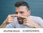guy is squeezing pimples on his ... | Shutterstock . vector #1140524441
