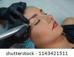 fibroblast  plasmalifting...   Shutterstock . vector #1143421511
