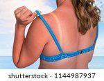 young woman with red sunburned... | Shutterstock . vector #1144987937