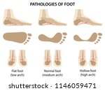pathologies of foot. difference ... | Shutterstock .eps vector #1146059471