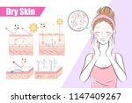 woman with dry skin on the... | Shutterstock .eps vector #1147409267