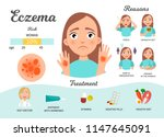 infographics of eczema.... | Shutterstock .eps vector #1147645091