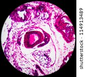 Small photo of education science medical anthropotomy physiology microscopic lymph gland tissue