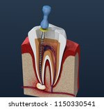 root canal treatment process.... | Shutterstock . vector #1150330541
