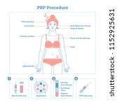 prp procedure vector... | Shutterstock .eps vector #1152925631