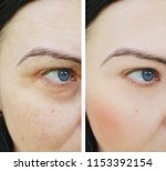 woman face wrinkles before and... | Shutterstock . vector #1153392154