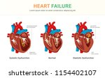 heart failure  systolic... | Shutterstock .eps vector #1154402107