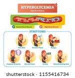 hyperglycemia vector... | Shutterstock .eps vector #1155416734