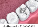 fissure dental fillings ... | Shutterstock . vector #1156066501