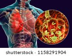 bacterial pneumonia  medical... | Shutterstock . vector #1158291904
