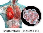 bacterial pneumonia  medical... | Shutterstock . vector #1160251111
