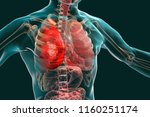 pneumonia medical concept  3d... | Shutterstock . vector #1160251174