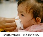 Small photo of Close up of a mother hand squeezing her daughter running nose - cleanning a baby's stuffy nose